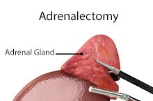 Adrenalectomy